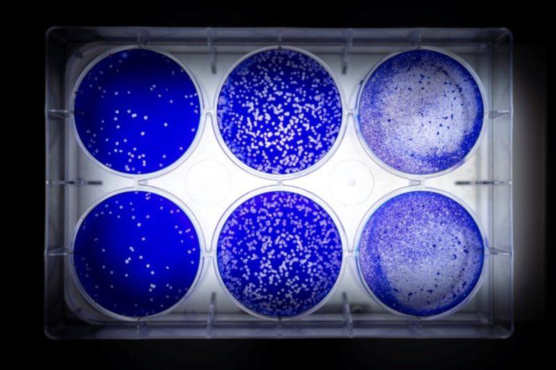 Cientistas buscam locais críticos da pandemia em corrida para testar vacinas